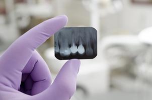 Cabinet dentaire dentiste pessac centre bordeaux dr - Cabinet radiologie bordeaux ...